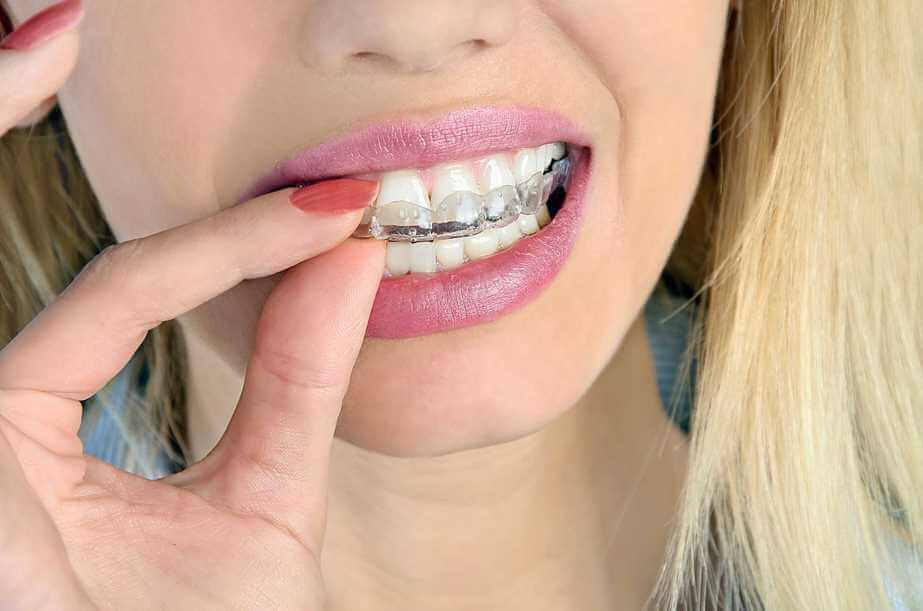 Bleaching - Zähne aufhellen