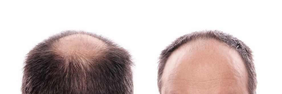 haarausfall glatze