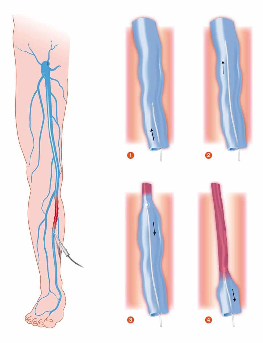 Krampfadern mit Laser behandeln